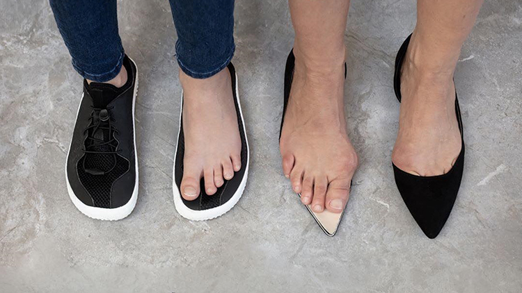 Cause of Bunions