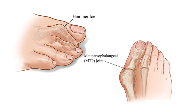 Complication of Bunions