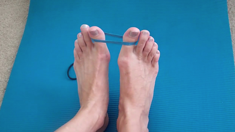 How to Prevent Bunions